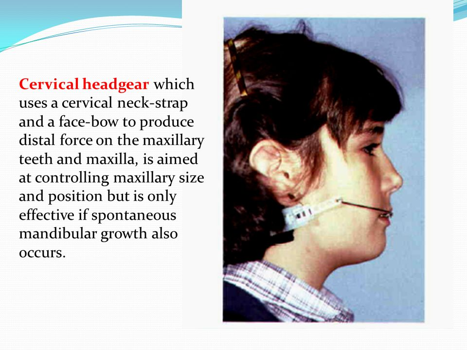 Cervical headgear which uses a cervical neck-strap and a face-bow to produce distal force on the maxillary teeth and maxilla, is aimed at controlling maxillary size and position but is only effective if spontaneous mandibular growth also occurs.