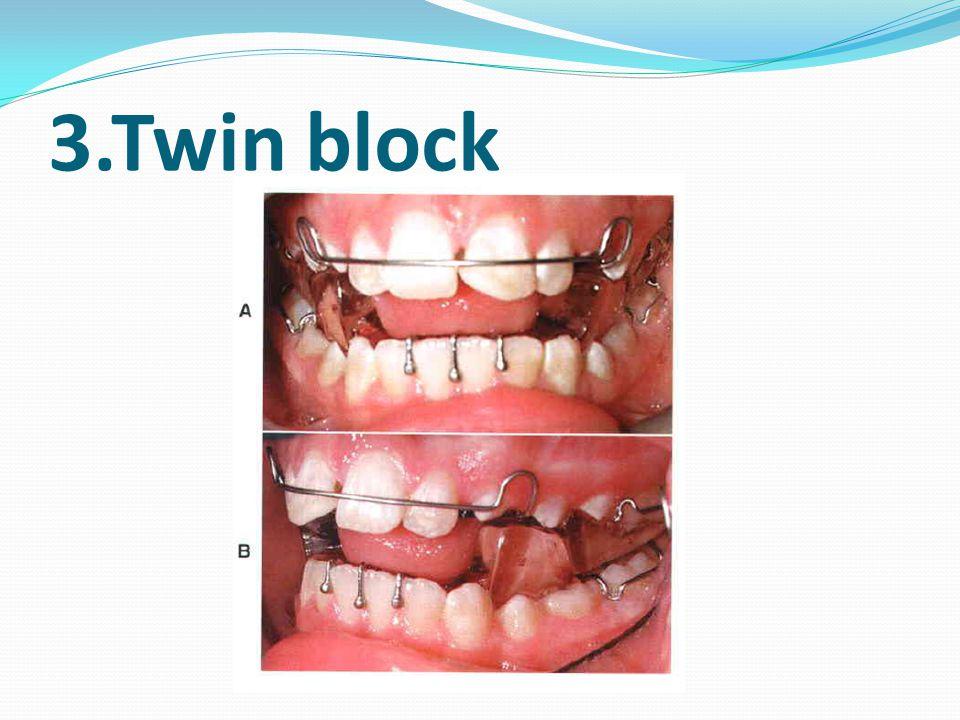 3.Twin block