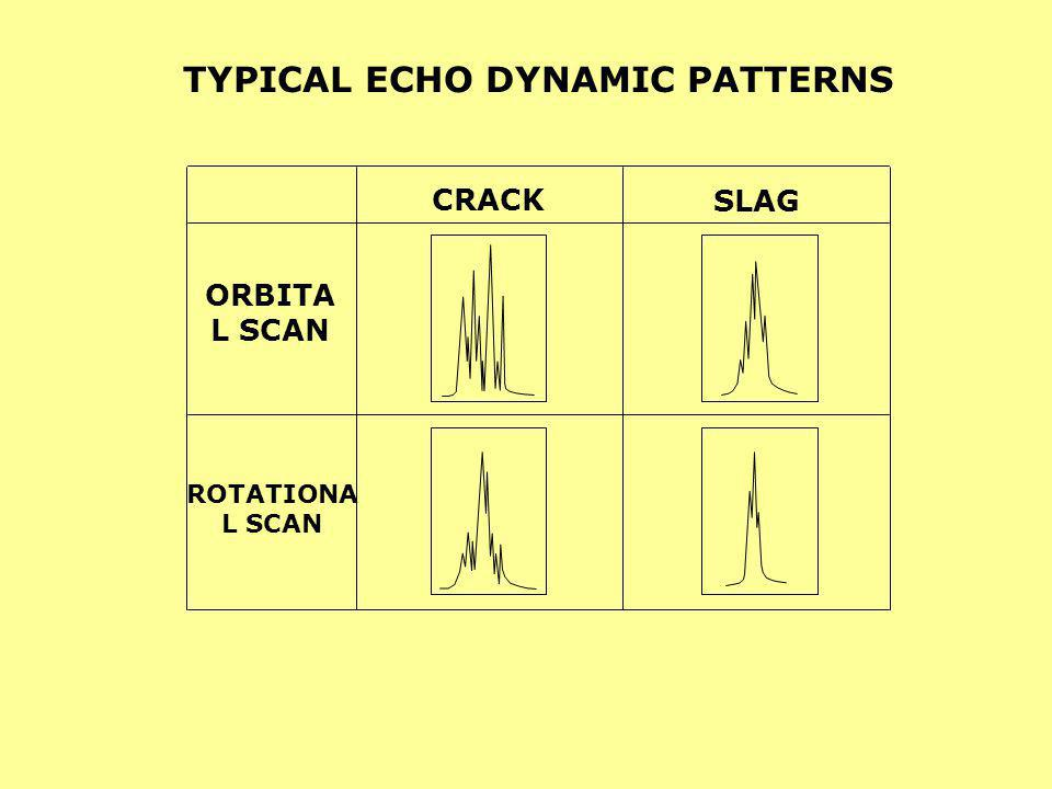 TYPICAL ECHO DYNAMIC PATTERNS