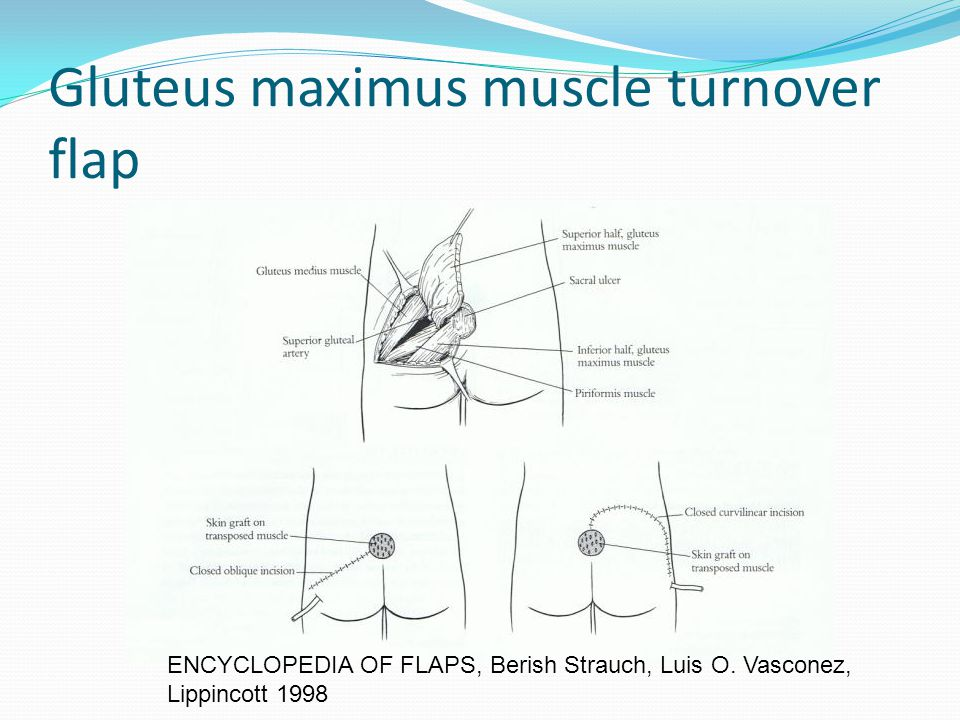 Gluteus maximus muscle turnover flap