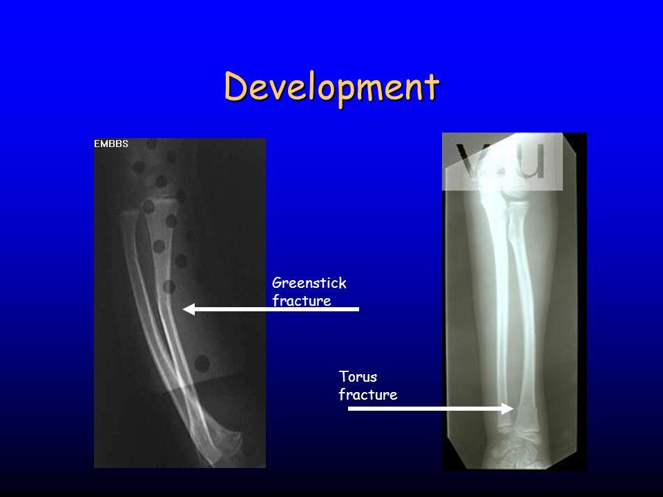 Development Greenstick fracture Torus fracture