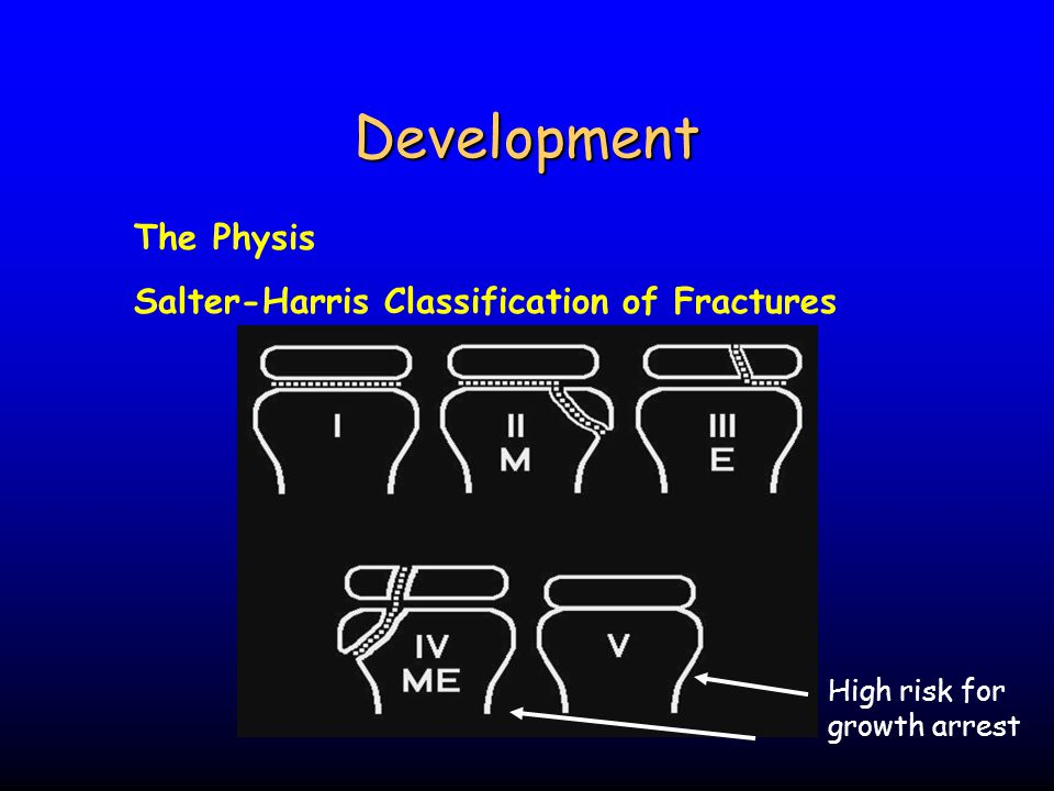 Development The Physis Salter-Harris Classification of Fractures