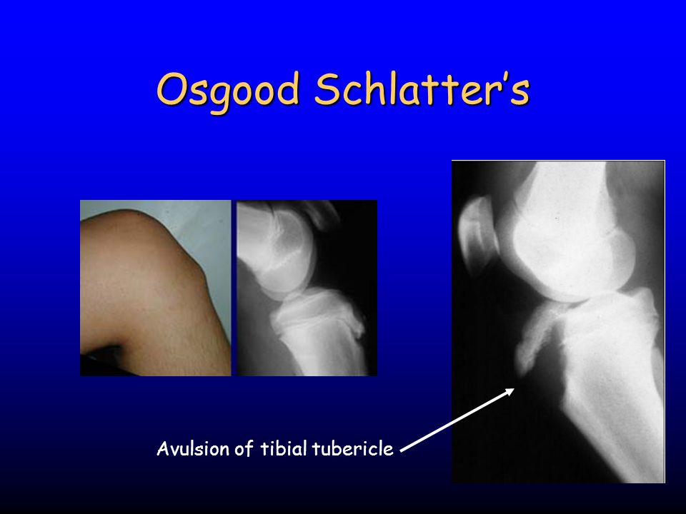 Osgood Schlatter's Avulsion of tibial tubericle