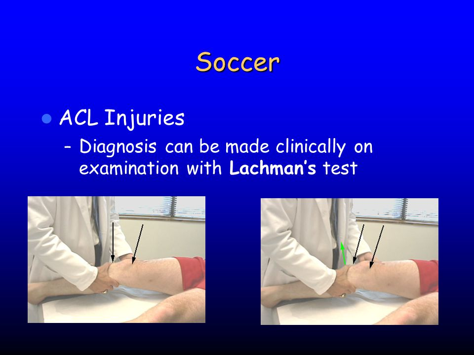 Soccer ACL Injuries Diagnosis can be made clinically on examination with Lachman's test