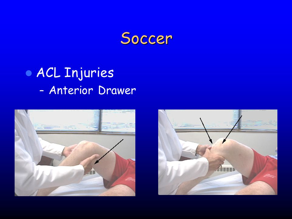 Soccer ACL Injuries Anterior Drawer