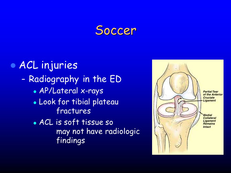 Soccer ACL injuries Radiography in the ED AP/Lateral x-rays
