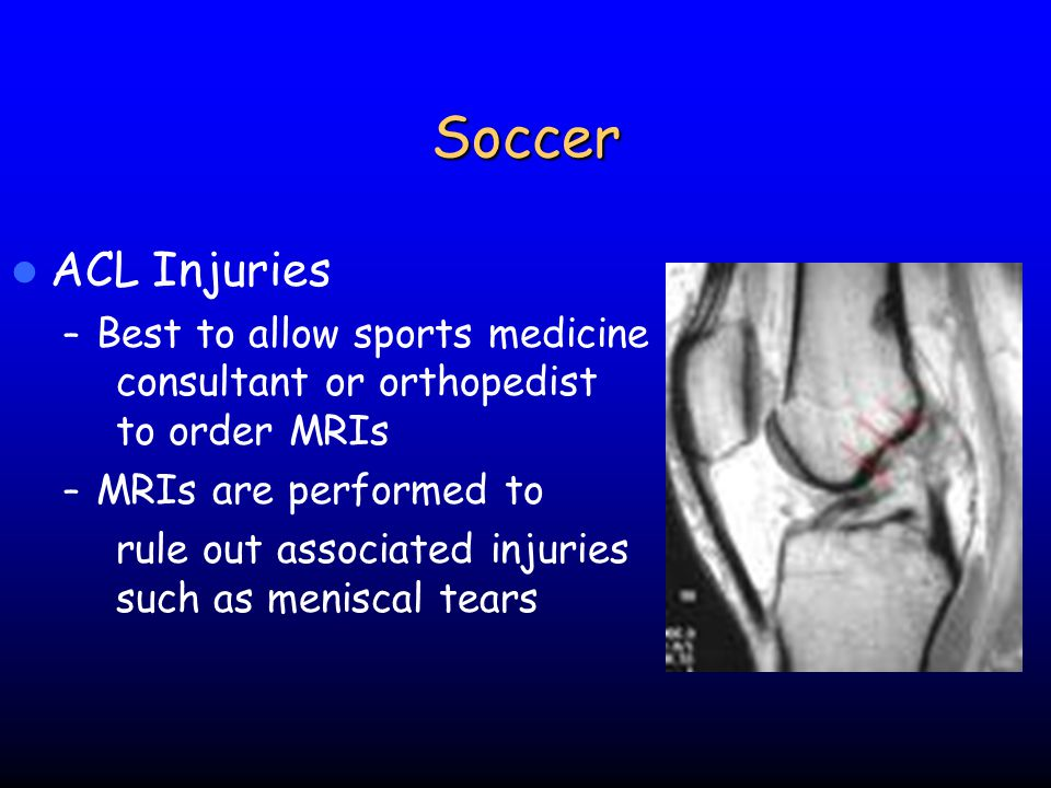 Soccer ACL Injuries. Best to allow sports medicine consultant or orthopedist to order MRIs. MRIs are performed to.