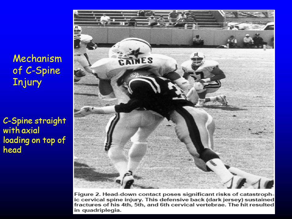 Mechanism of C-Spine Injury