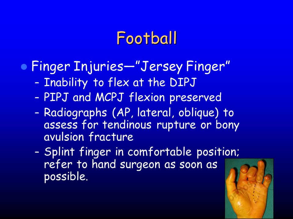 Football Finger Injuries— Jersey Finger Inability to flex at the DIPJ