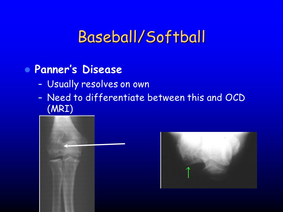 Baseball/Softball Panner's Disease Usually resolves on own