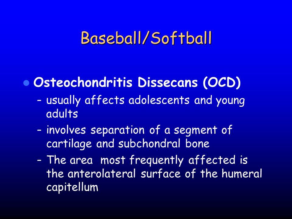 Baseball/Softball Osteochondritis Dissecans (OCD)