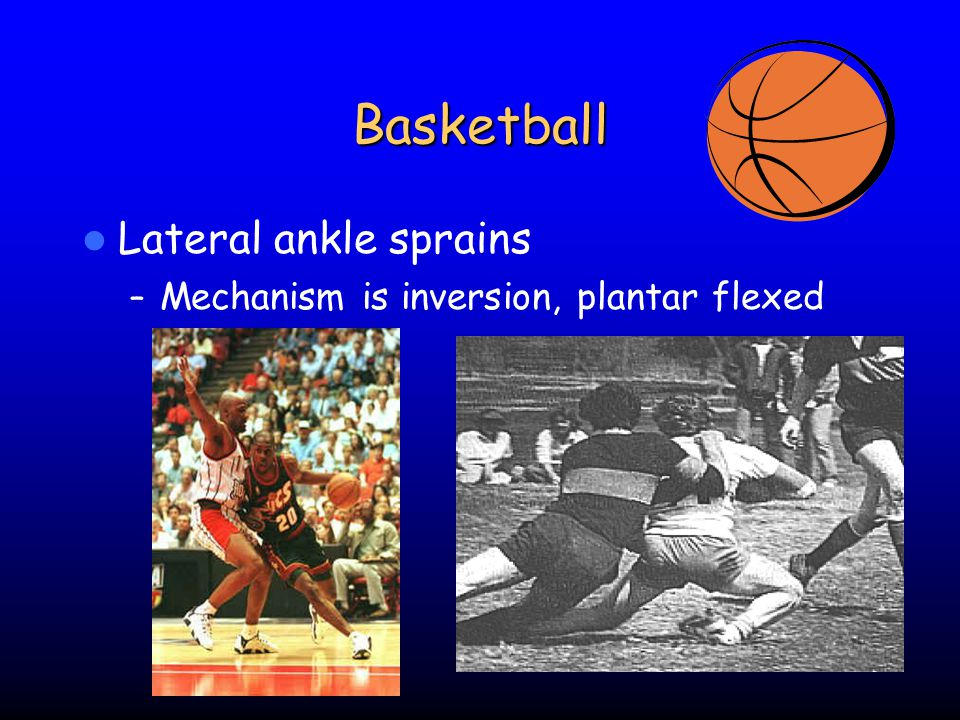 Basketball Lateral ankle sprains