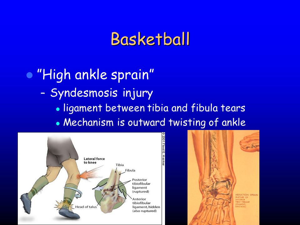 Basketball High ankle sprain Syndesmosis injury