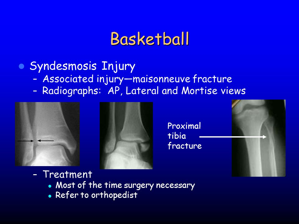 Basketball Syndesmosis Injury Associated injury—maisonneuve fracture