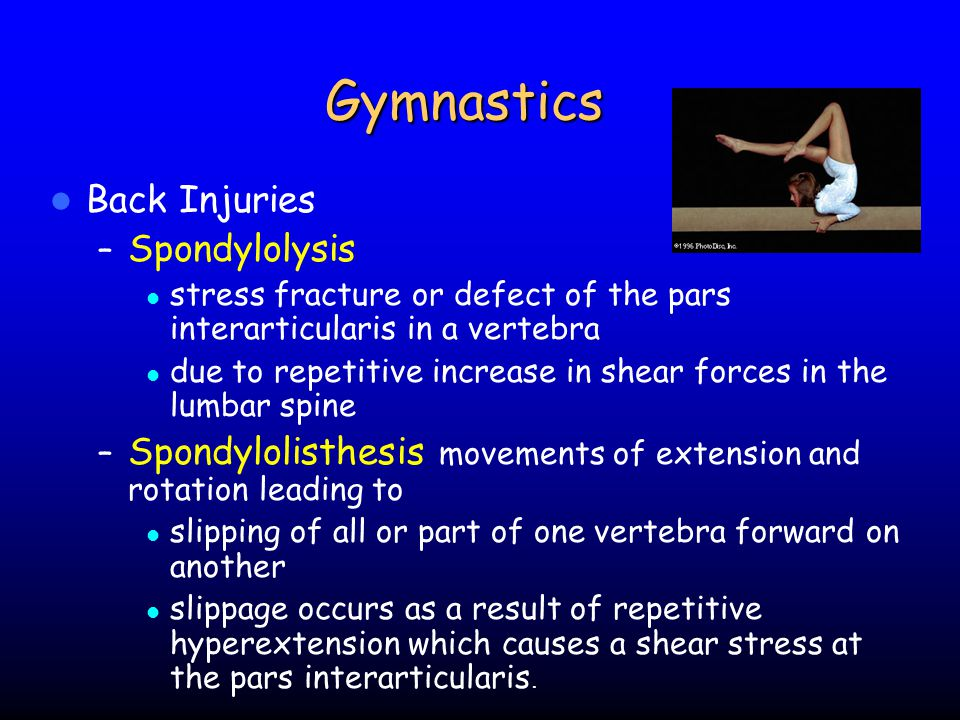 Gymnastics Back Injuries Spondylolysis