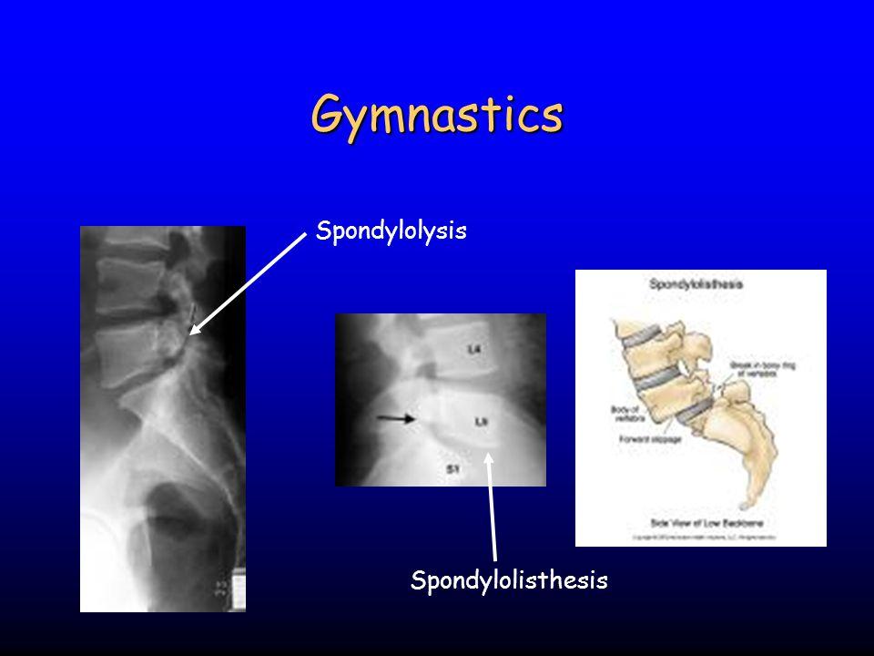 Gymnastics Spondylolysis Spondylolisthesis