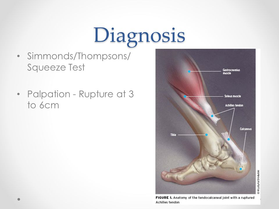 Diagnosis Simmonds/Thompsons/Squeeze Test