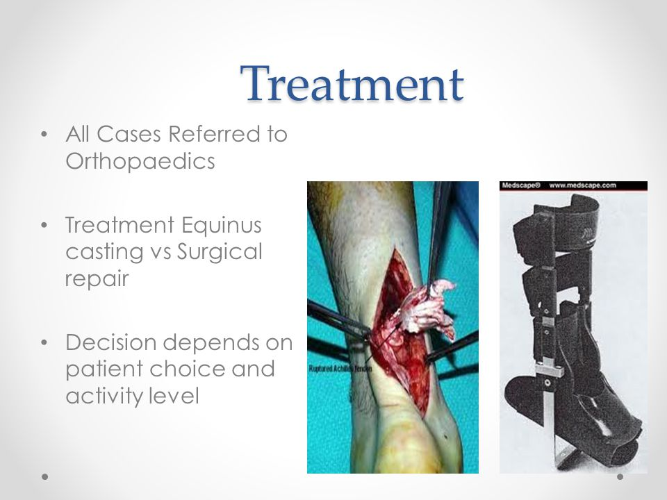 Treatment All Cases Referred to Orthopaedics