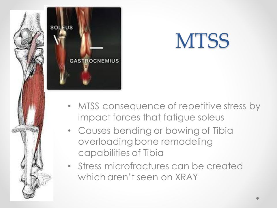 MTSS MTSS consequence of repetitive stress by impact forces that fatigue soleus.