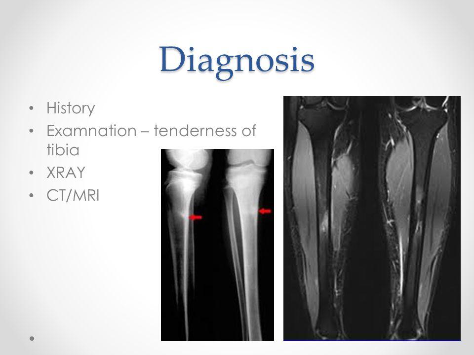 Diagnosis History Examnation – tenderness of tibia XRAY CT/MRI