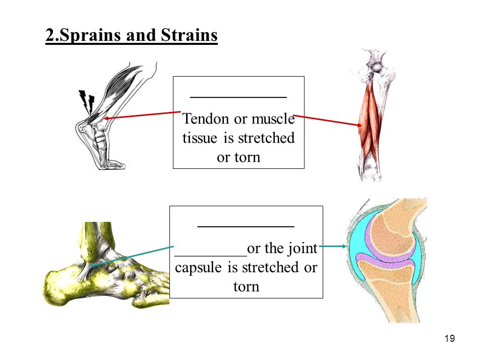 2.Sprains and Strains ____________