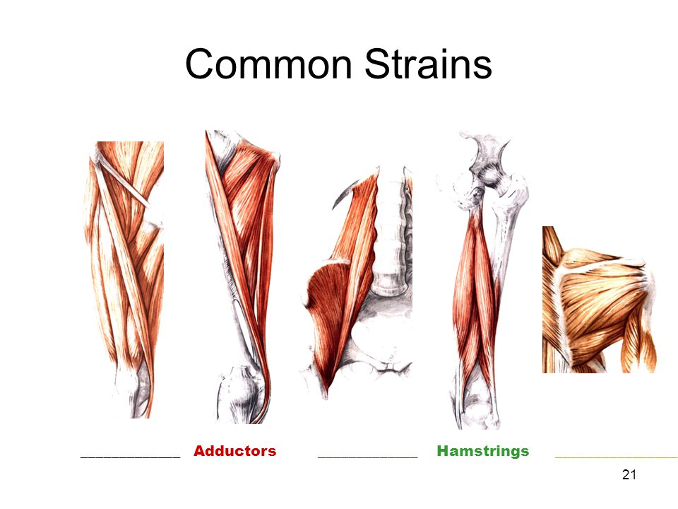 Common Strains Adductors Hamstrings _____________ _____________