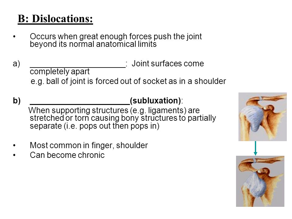 B: Dislocations: Occurs when great enough forces push the joint beyond its normal anatomical limits.