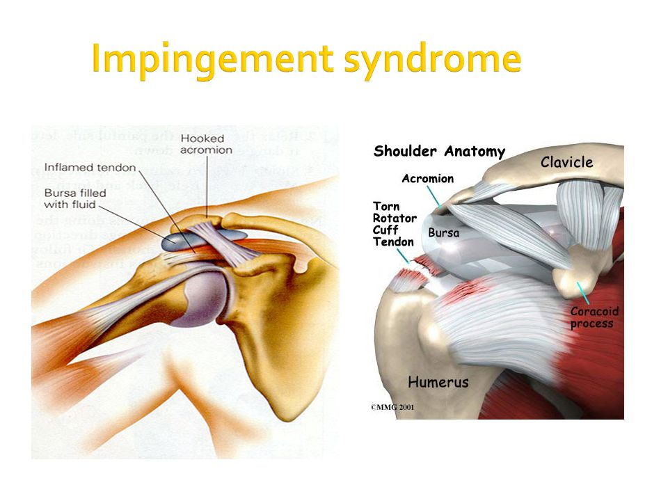 When Things Go Wrong Common Sport Injuries Ppt Video