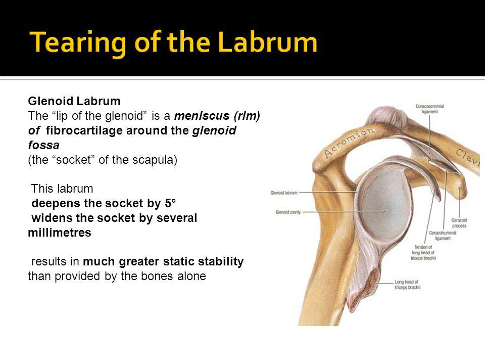 Tearing of the Labrum Glenoid Labrum