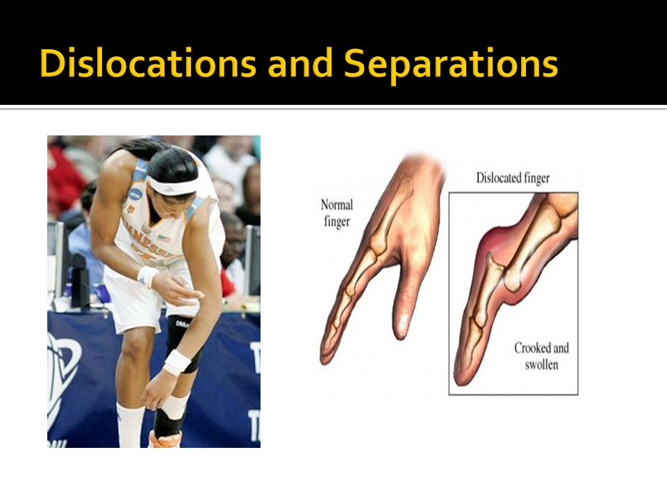 Dislocations and Separations