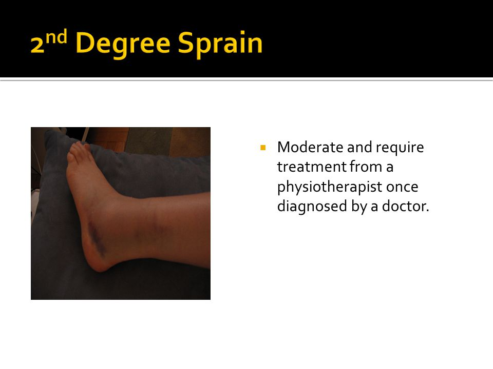 2nd Degree Sprain Moderate and require treatment from a physiotherapist once diagnosed by a doctor.