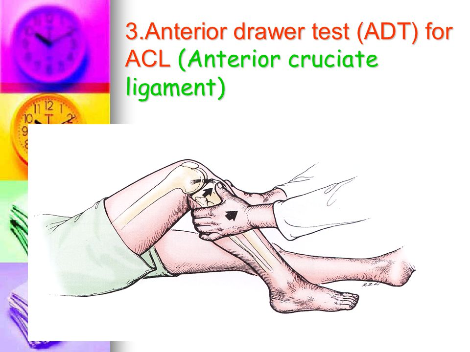 3.Anterior drawer test (ADT) for ACL (Anterior cruciate ligament)