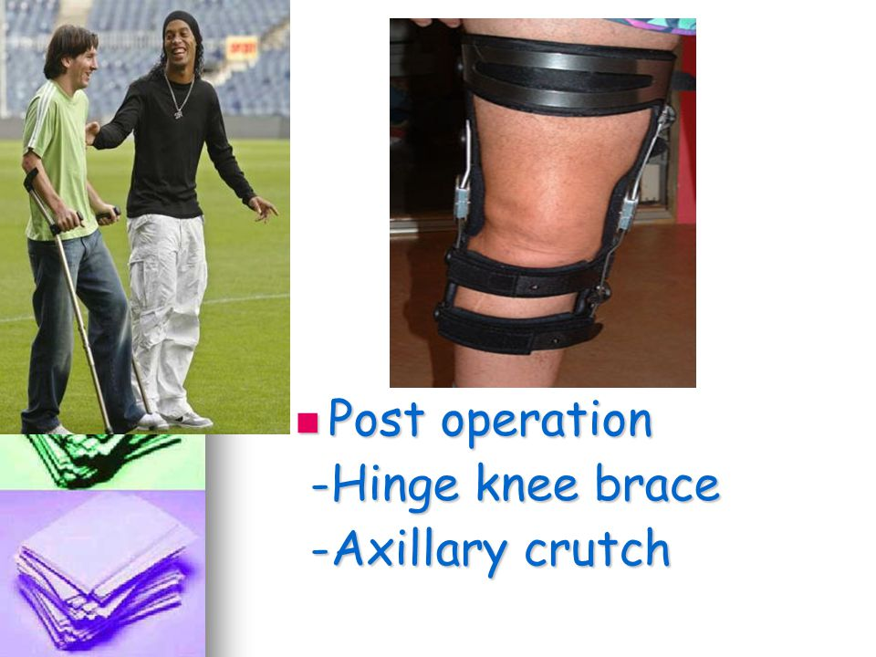 Post operation -Hinge knee brace -Axillary crutch