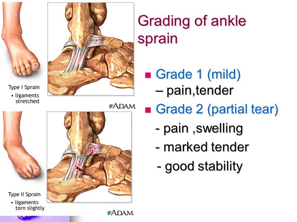 Grading of ankle sprain