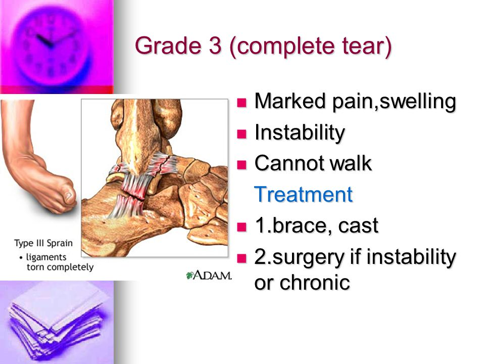 Grade 3 (complete tear) Marked pain,swelling Instability Cannot walk