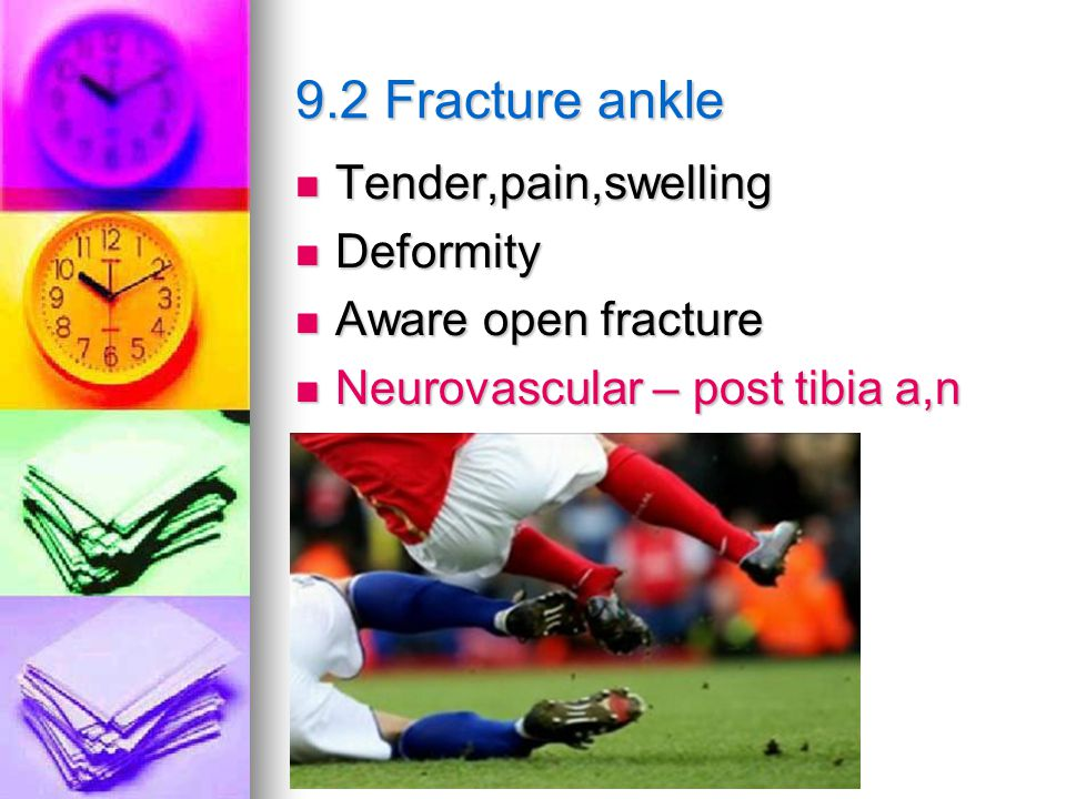 9.2 Fracture ankle Tender,pain,swelling Deformity Aware open fracture
