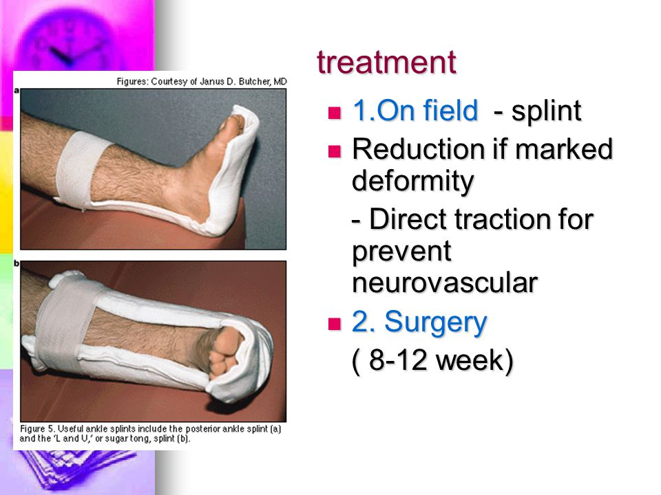 treatment 1.On field - splint Reduction if marked deformity