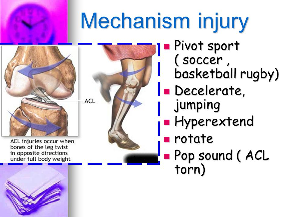 Mechanism injury Pivot sport ( soccer , basketball rugby)