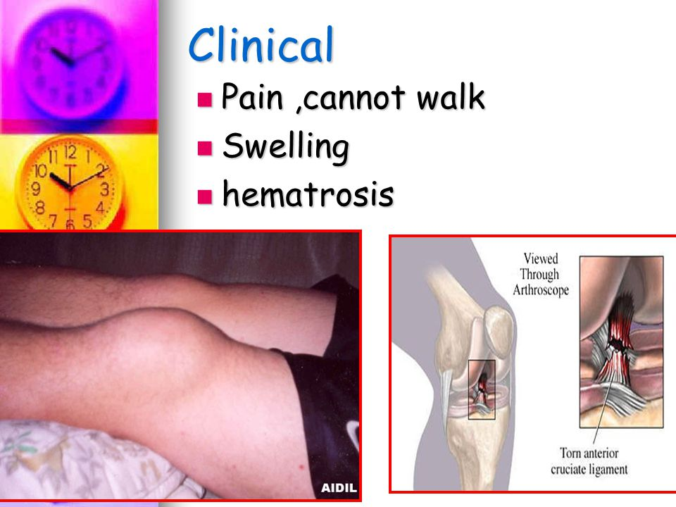 Clinical Pain ,cannot walk Swelling hematrosis