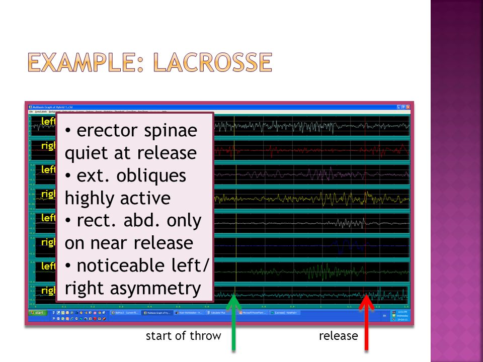 Example: lacrosse erector spinae quiet at release