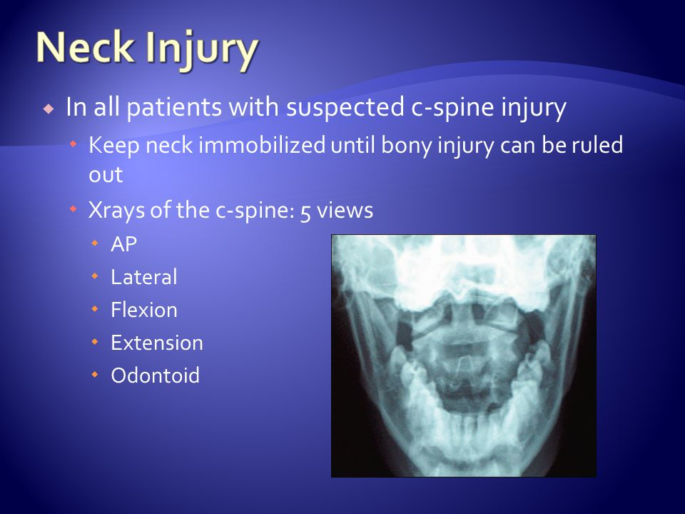 Neck Injury In all patients with suspected c-spine injury