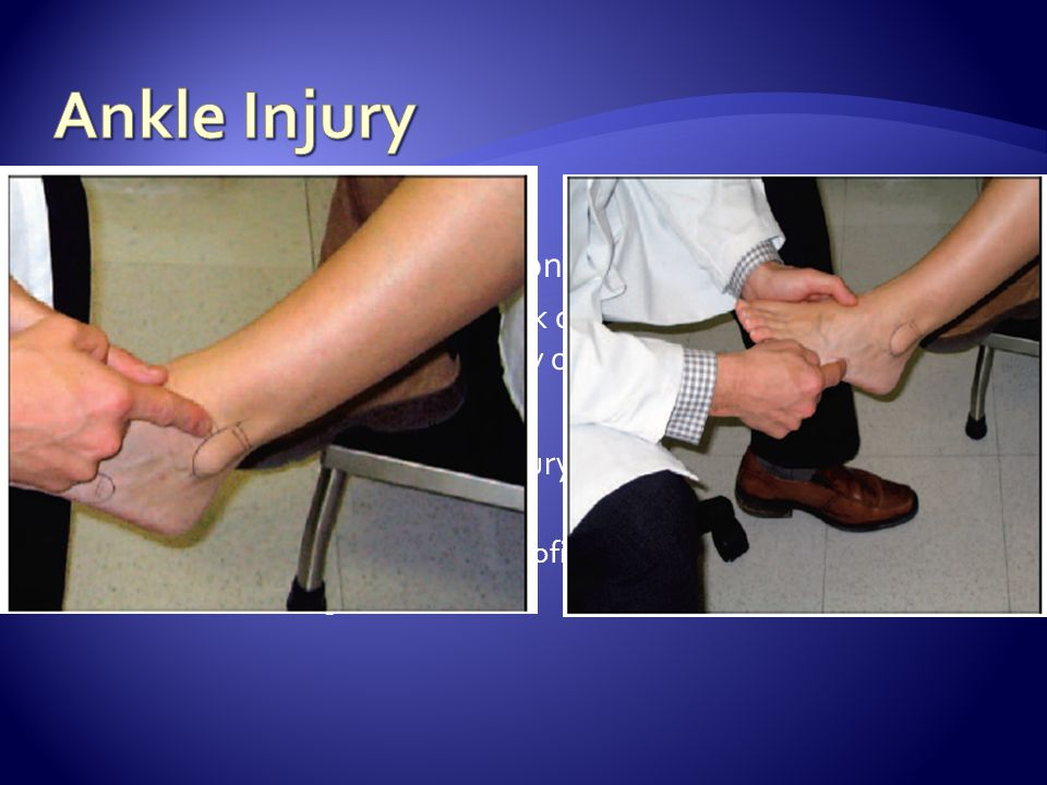 Ankle Injury Physical exam: Observation and inspection Ankle exam