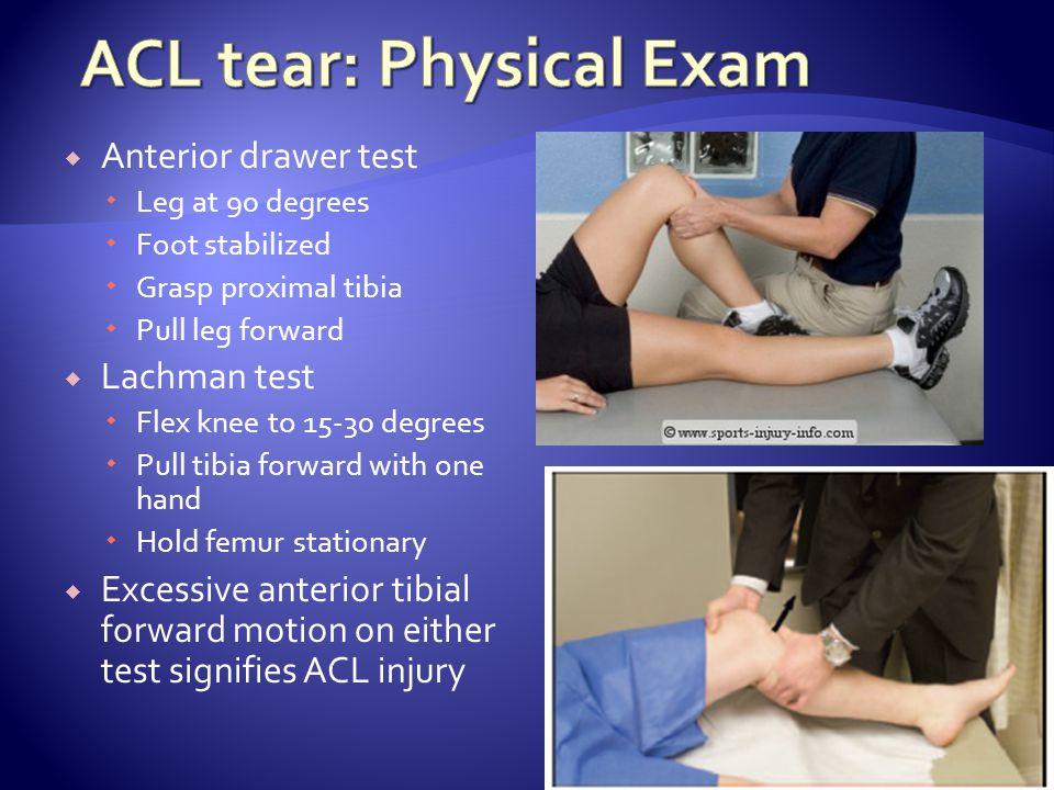 ACL tear: Physical Exam