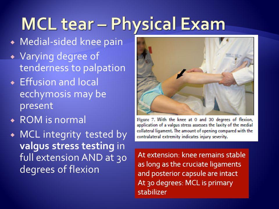 MCL tear – Physical Exam