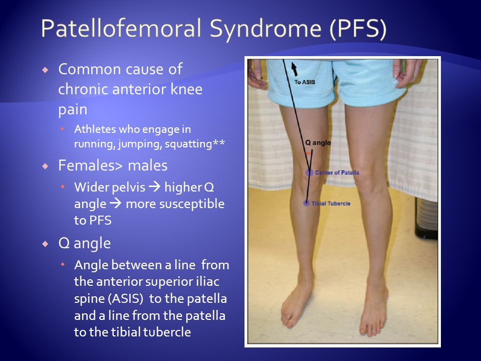 Patellofemoral Pain Syndrome Driverlayer Search Engine