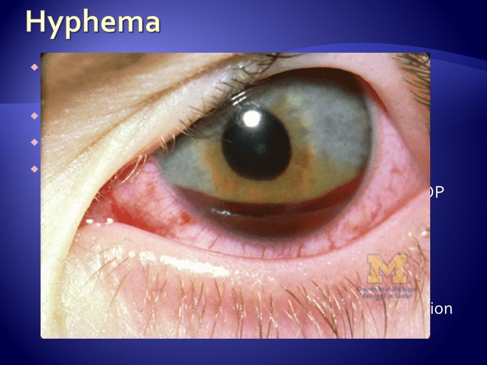 Hyphema Collection of blood in the anterior chamber of the eye between the iris and the cornea. Visual disturbances, photophobia, eye pain.
