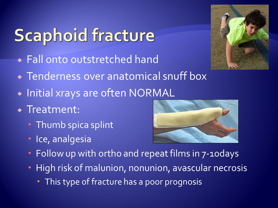 Scaphoid fracture Fall onto outstretched hand