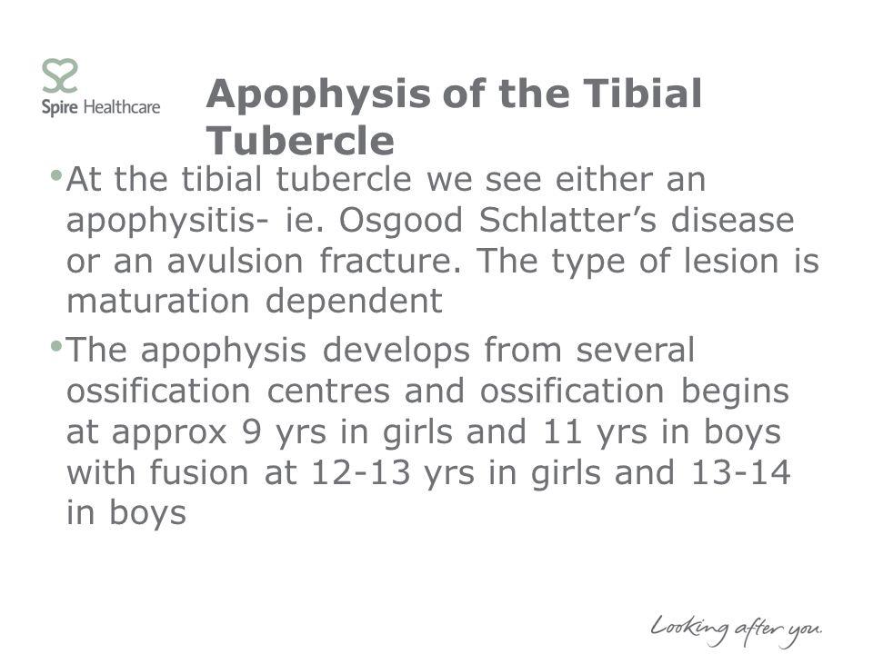 Apophysis of the Tibial Tubercle