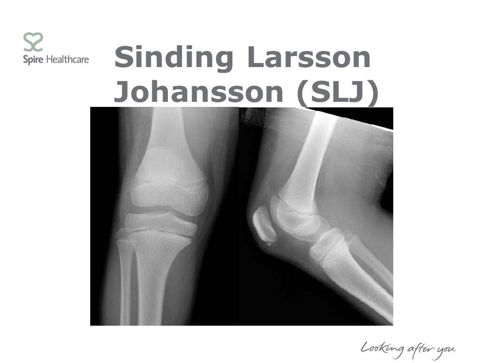Sinding Larsson Johansson (SLJ)