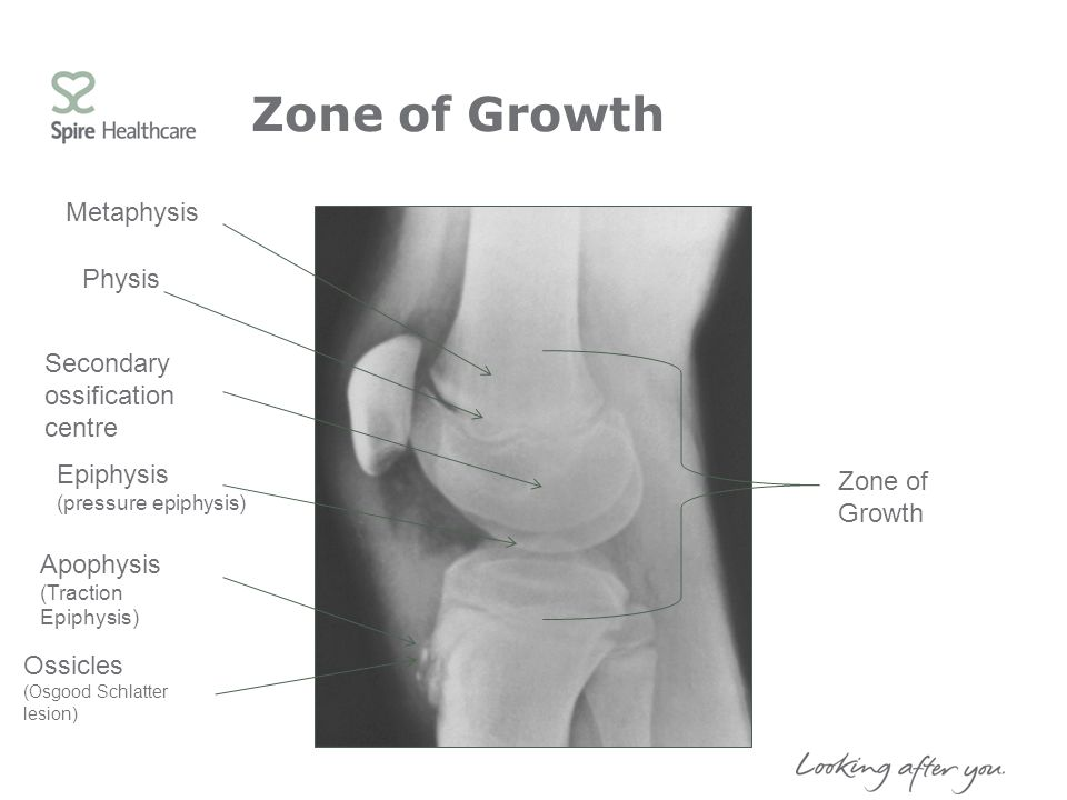 Zone of Growth Metaphysis Physis Secondary ossification centre